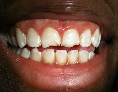 Veneers Teeth NJ