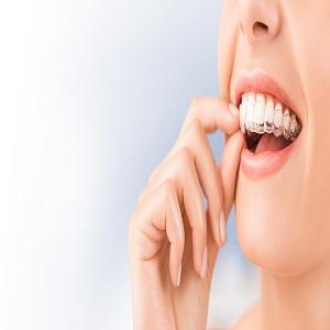 Lancaster Dentist Smiles