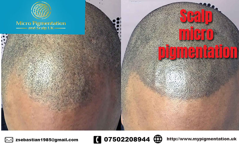 Micro pigmentation and scalp UK| Micro pigment tattoo
